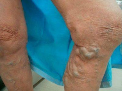 下肢静脈瘤血管内治療