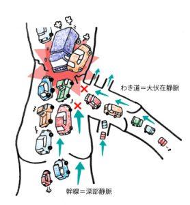 深部静脈血栓症 - つくば血管センター